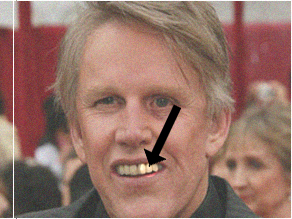 I-Mockery.com - A Message From One Of Gary Busey's Teeth